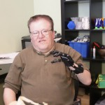 $42,000 prosthesis replaced by superior, 3D printed version for $50