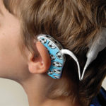 A UHS Cochlear Implant Unit (Cochlear)