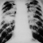 New black lung case identified