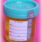 Fake urine use increasing in the Pilbara